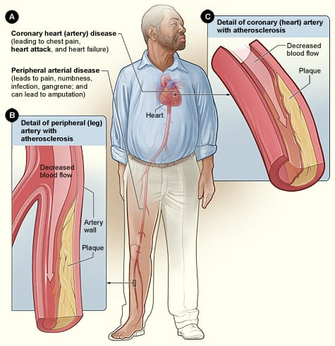 Illustration of coronary artery with atherosclerosis