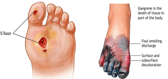 Critical limb ischemia (CLI) foot illustration