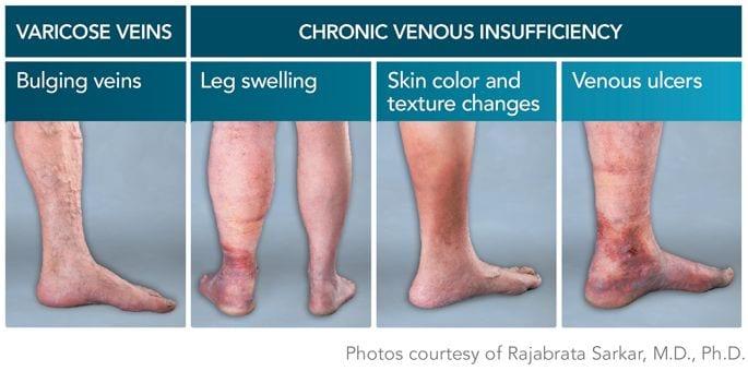 varicose veins and chronic venous insufficiency (CVI)