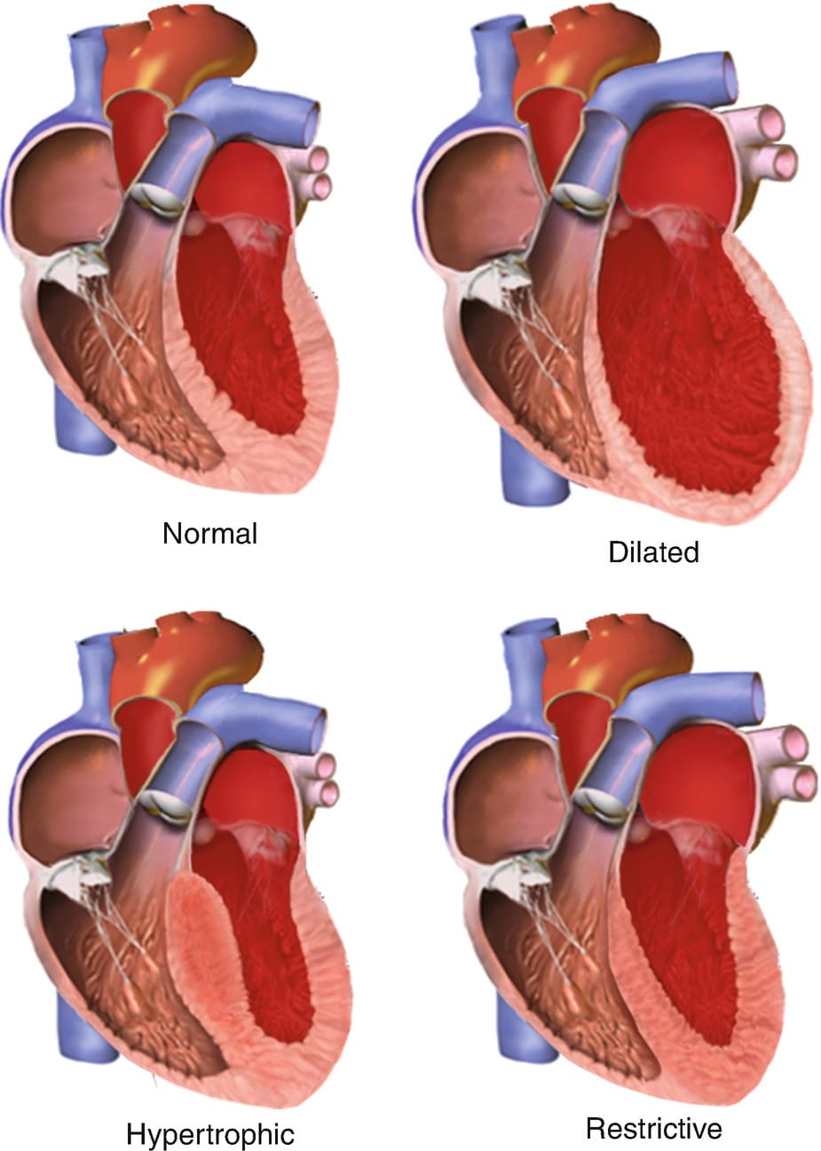 Illustrations of types of normal heart vs dilated, hypertrophic and restrictive cardiomyopathy