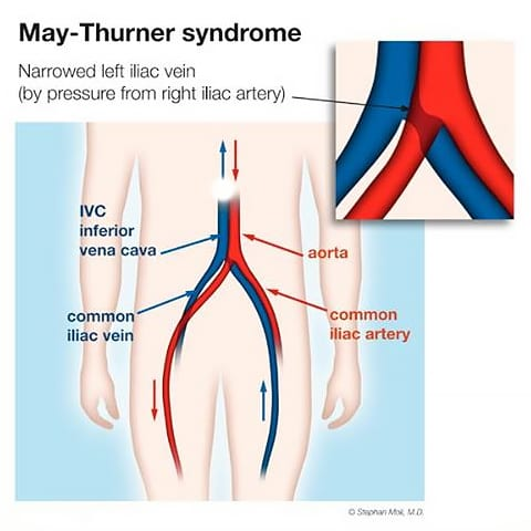 May-Thurner syndrome (MTS) illustration