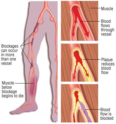 Peripheral artery disease (PAD) illustration