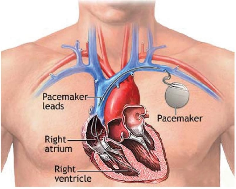 Pacemaker implant placement illustration