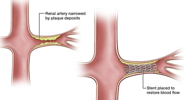 Renal artery stenting illustration