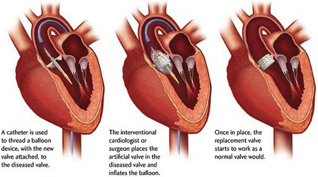 Transcatheter aortic valve replacement (TAVR) procedure illustration