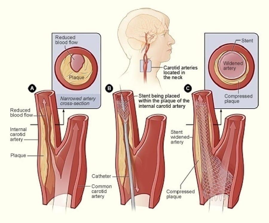 Carotid artery stenting illustration