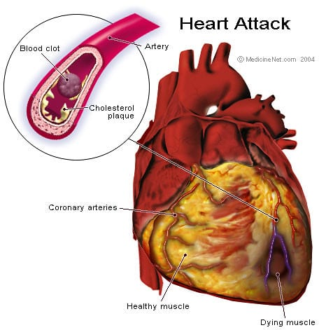 Illustration of a heart attack