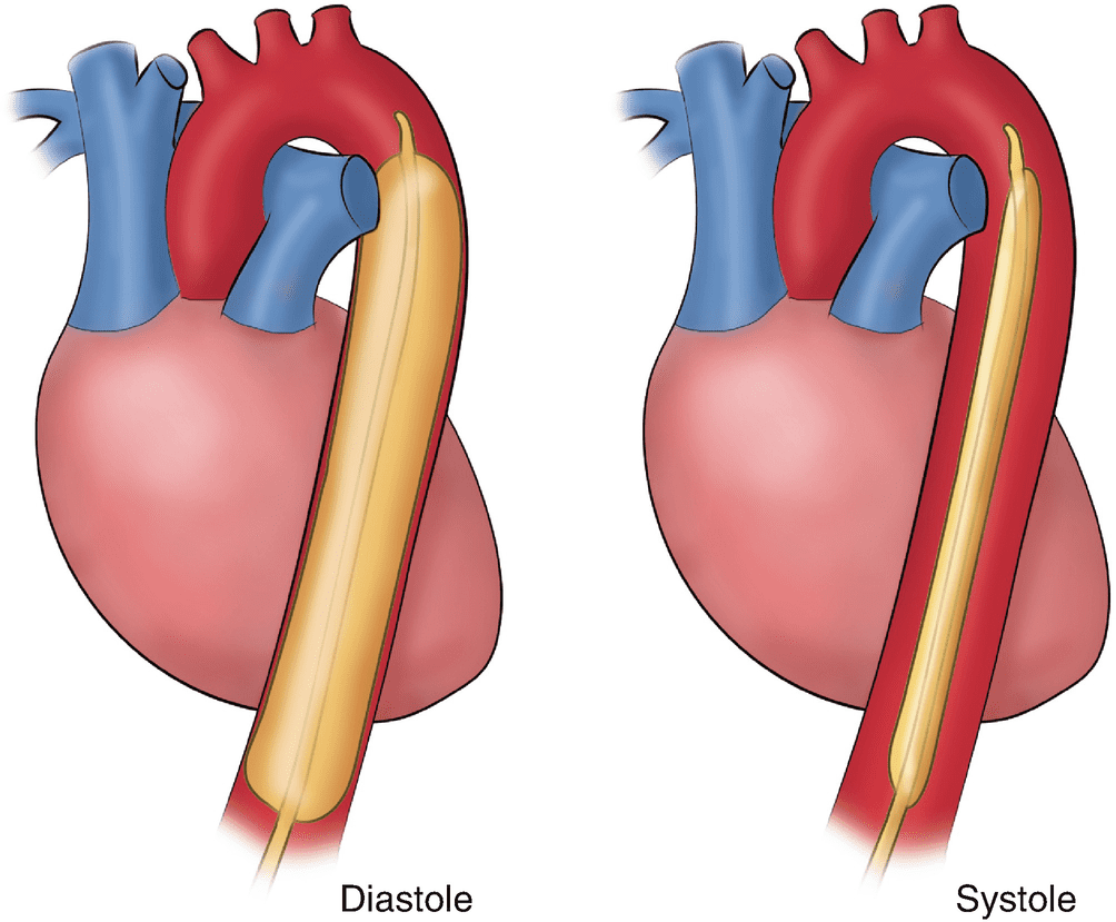 Intra-aortic balloon pump (IABP) implant illustration