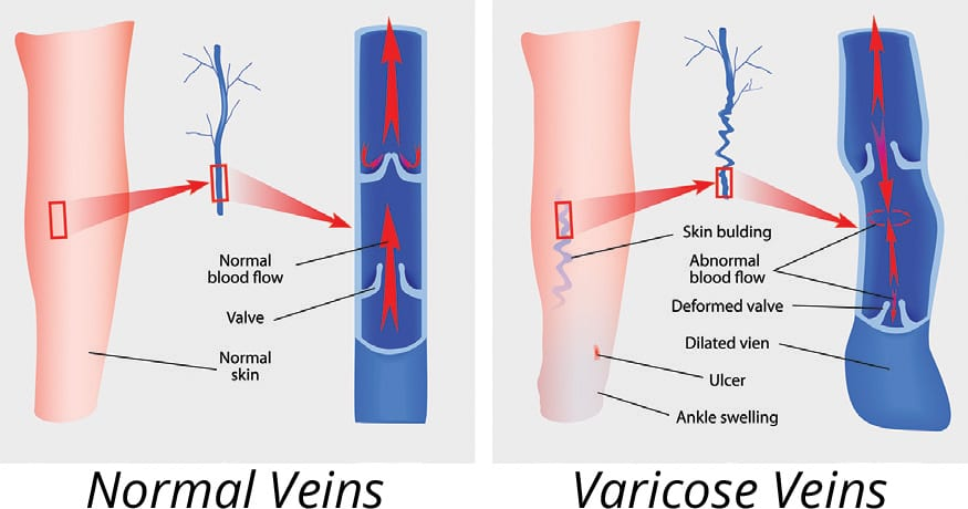 illustration of normal veins vs. varicose veins