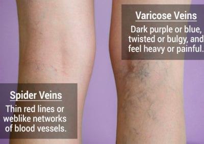 spider veins vs varicose veins