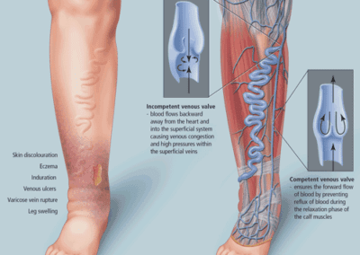 Varicose veins illustration