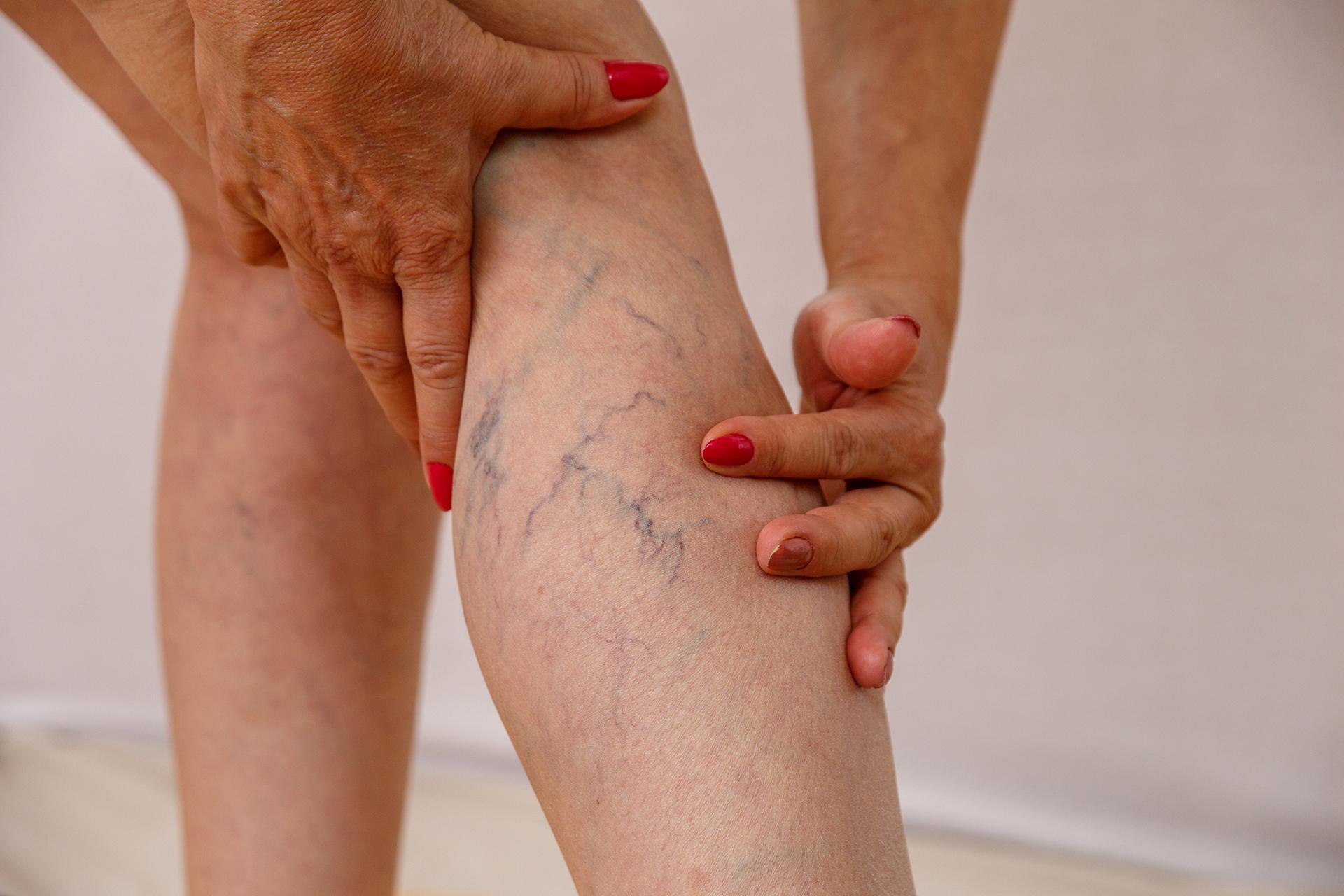 vascular-issues-requiring-leg-pain-doctor-Park-La-Brea