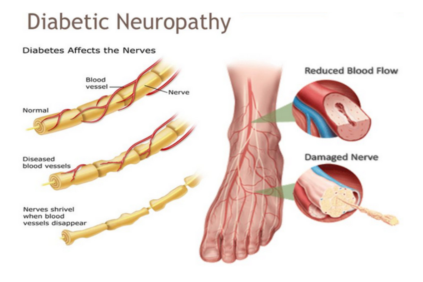 diagram of Diabetic neuropathy